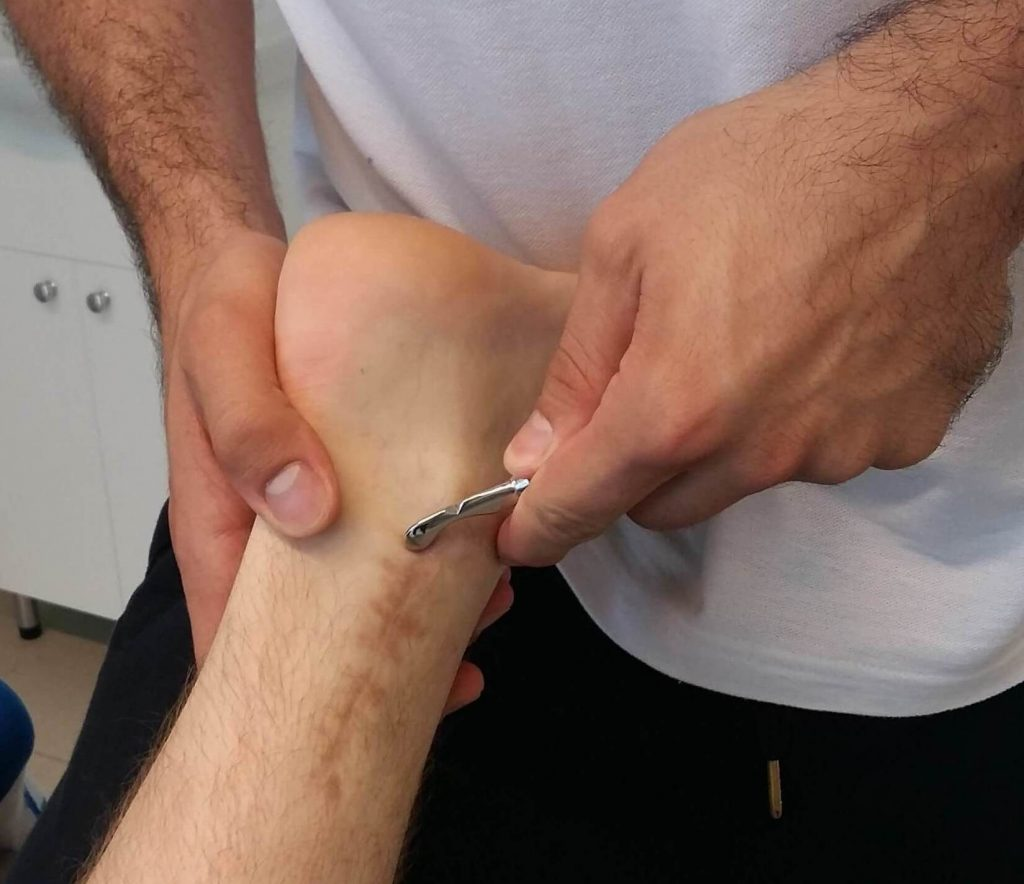 IASTM (Instrument assisted soft tissue mobilization)