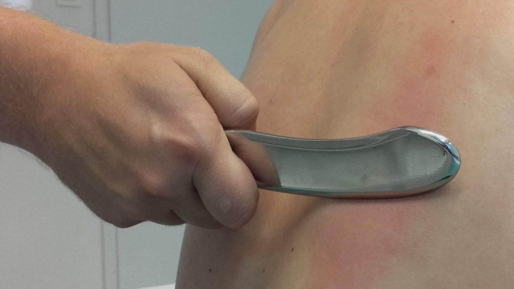 IASTM (Instrument assisted soft tissue mobilization) tehnika opuštanja mišića, ligamenata i fascija