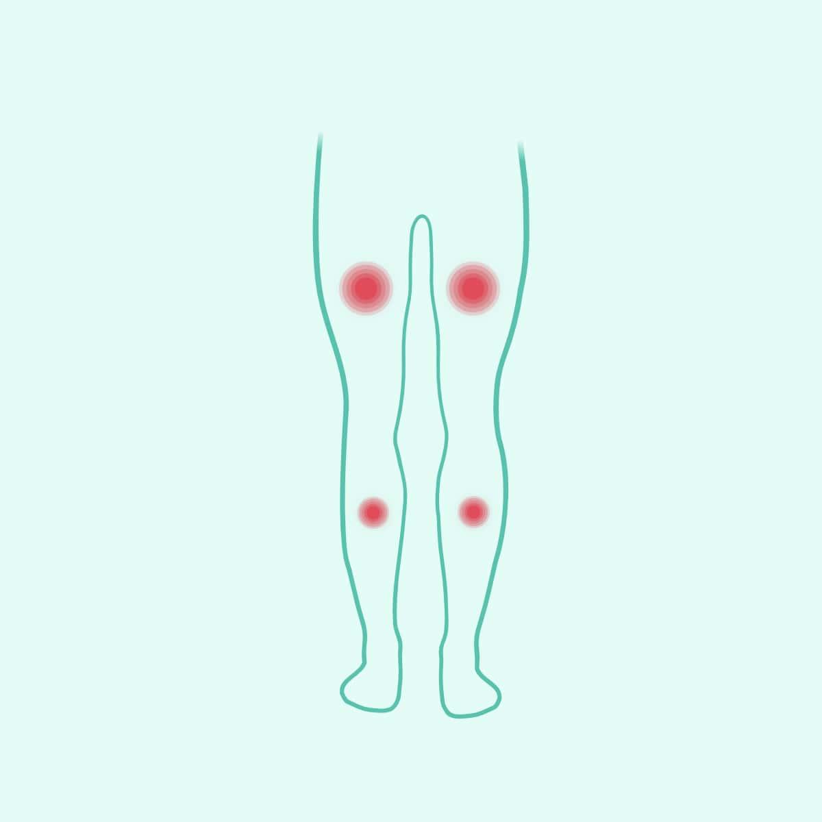 Bolovi u mišićima Body Balance