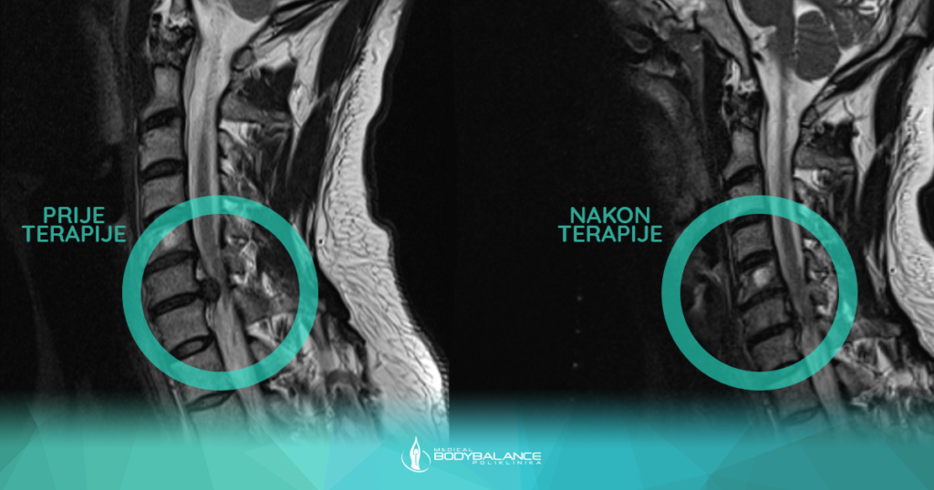 Dekompresijska terapija kralježnice, rezultat terapije cervikalna kralježnica