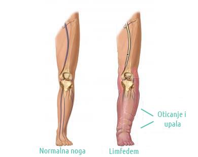 Limfedem-noga
