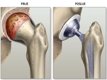 prije-poslije endoproteze kuka